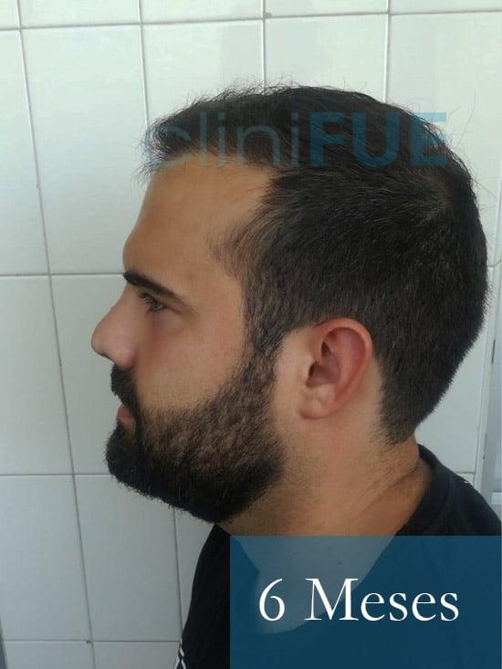 Sergio 26 años Alicante trasplante capilar turquia 6 Meses 4
