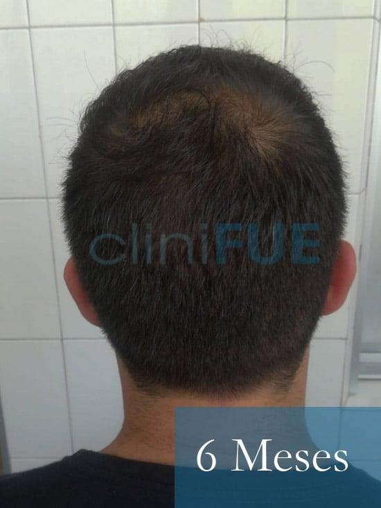Sergio 26 años Alicante trasplante capilar turquia 6 Meses 5