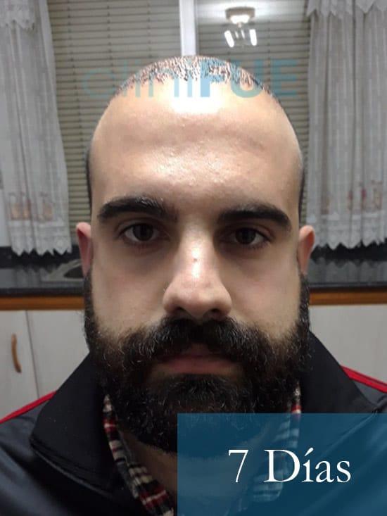 Sergio 26 años Alicante trasplante capilar turquia 7 dias 1