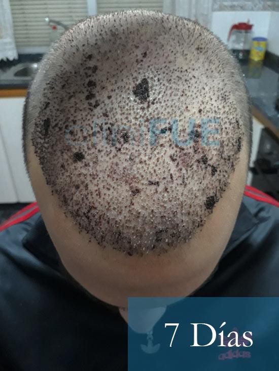 Sergio 26 años Alicante trasplante capilar turquia 7 dias 2