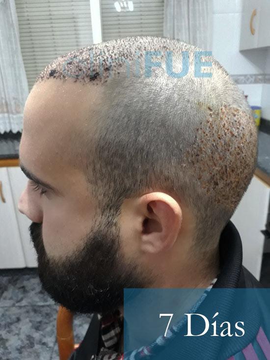 Sergio 26 años Alicante trasplante capilar turquia 7 dias 4