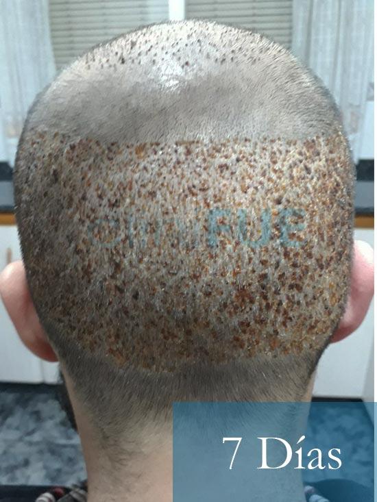 Sergio 26 años Alicante trasplante capilar turquia 7 dias 5