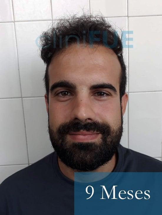Sergio 26 años Alicante trasplante capilar turquia 9 Meses 1
