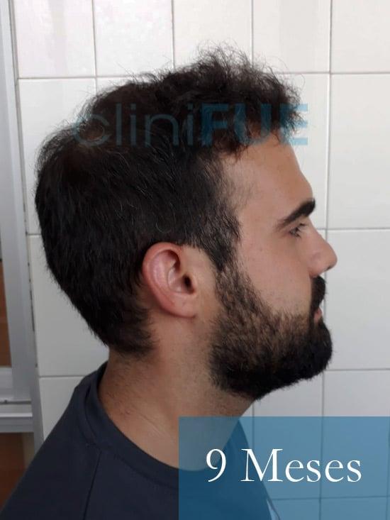 Sergio 26 años Alicante trasplante capilar turquia 9 Meses 3