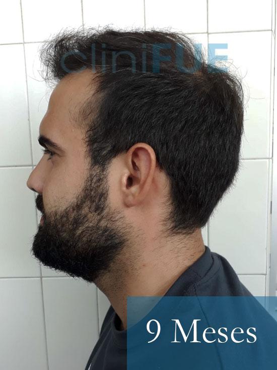 Sergio 26 años Alicante trasplante capilar turquia 9 Meses 4