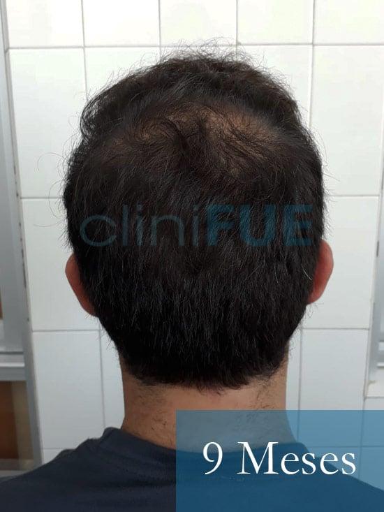 Sergio 26 años Alicante trasplante capilar turquia 9 Meses 5
