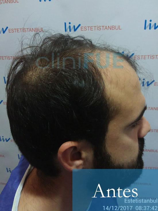 Sergio 26 años Alicante trasplante capilar turquia Antes 3