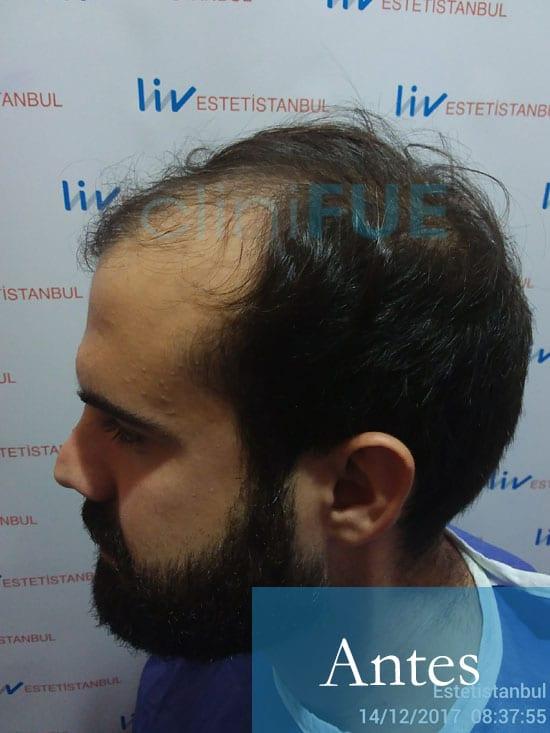 Sergio 26 años Alicante trasplante capilar turquia Antes