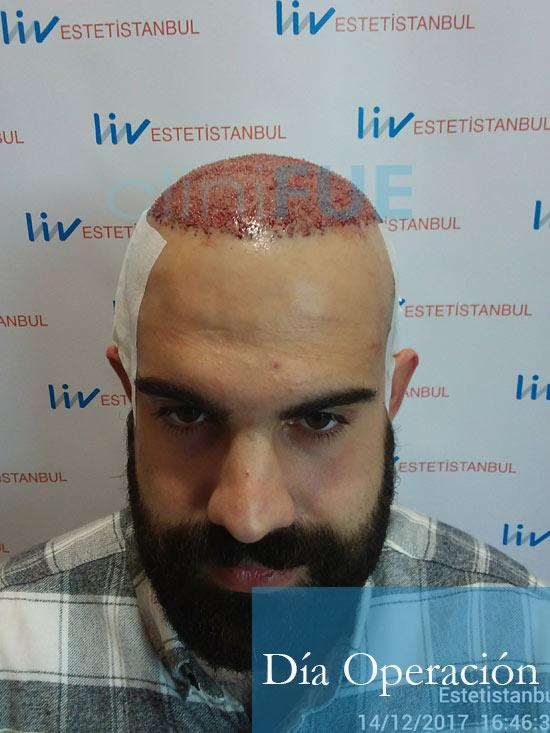 Sergio 26 años Alicante trasplante capilar turquia Dia Operacion 3