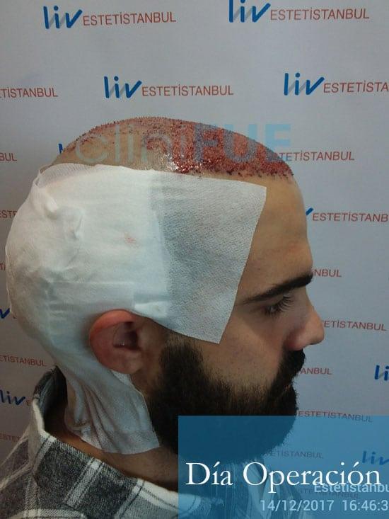 Sergio 26 años Alicante trasplante capilar turquia Dia Operacion 5