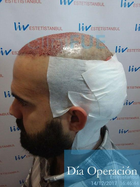 Sergio 26 años Alicante trasplante capilar turquia Dia Operacion 6
