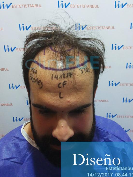 Sergio 26 años Alicante trasplante capilar turquia Dia Operacion