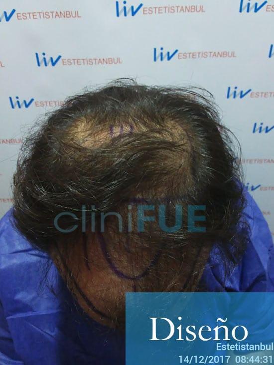 Sergio 26 años Alicante trasplante capilar turquia Dia Operacion 2