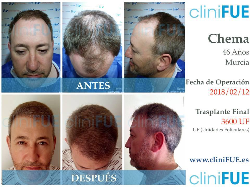 Chema 46 Murcia trasplante capilar antes y despues