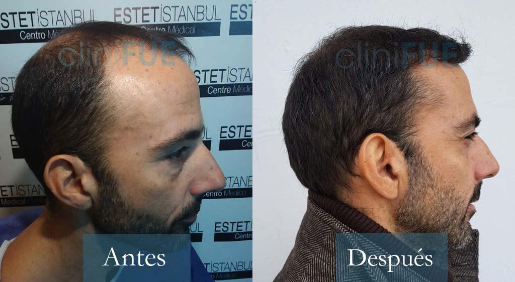 Oscar 38 Valencia_ antes y despues trasplante capilar cliniFUE