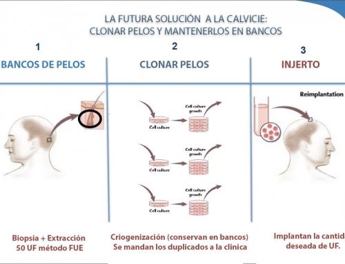El futuro de los transplantes capilares: Clonar pelos ayudará.
