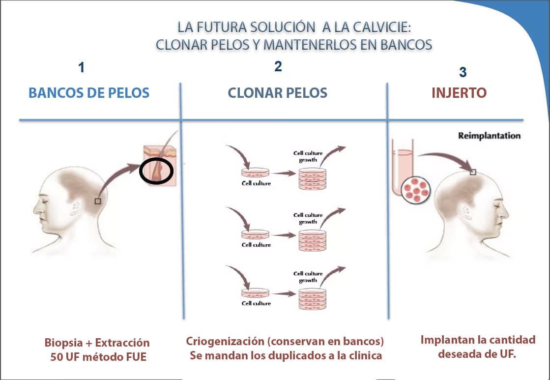 Clonar pelos el futuro de los injertos capilares