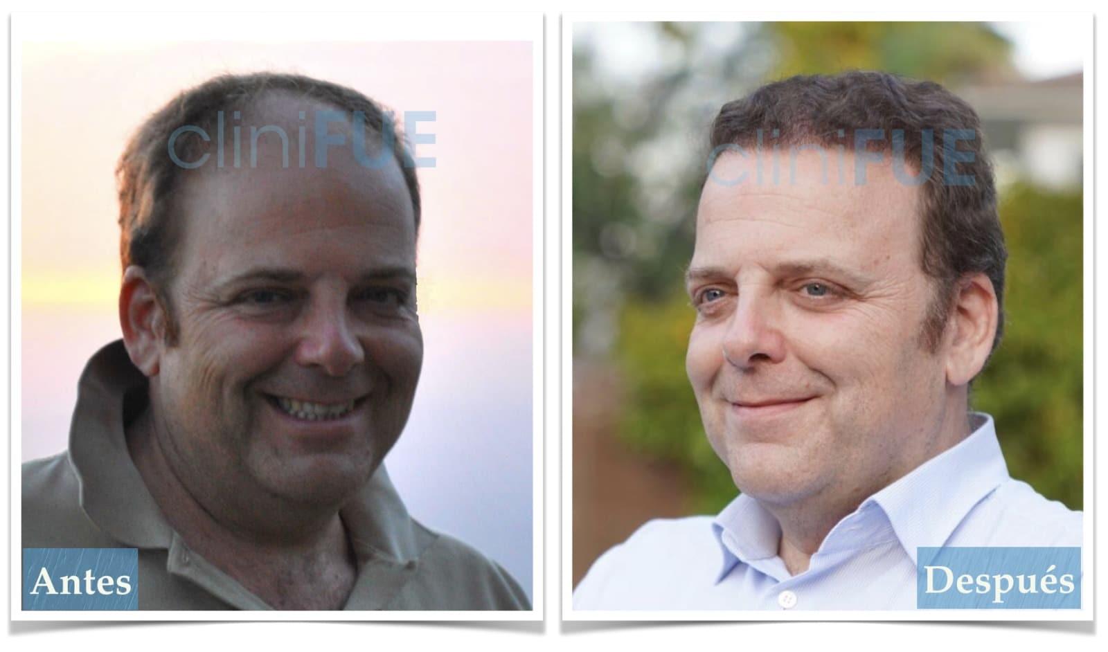Julian 45 años Cordoba trasplante capilar turquia Antes y Despues
