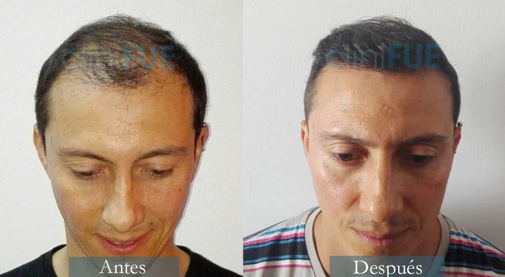 Trasplante capilar de Andrés 37 Años de Barcelona con cliniFUE