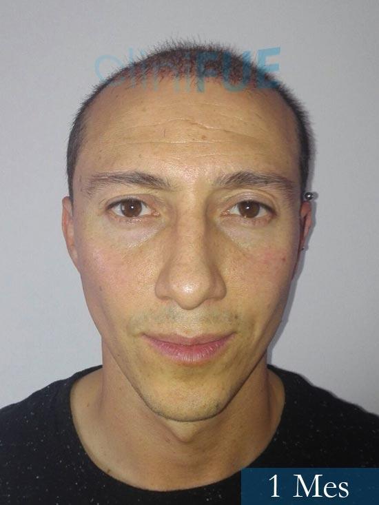 Andres 37 Barcelona injerto capilar turquia 1 mes