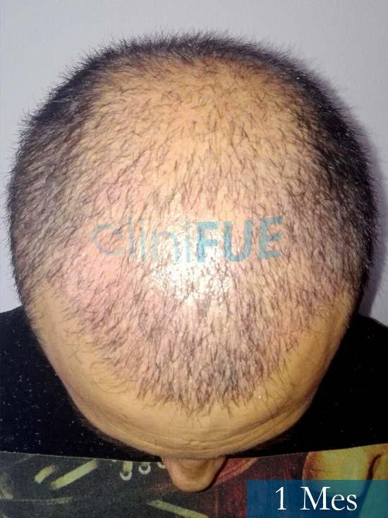 Andres 37 Barcelona injerto capilar turquia 1 mes 3
