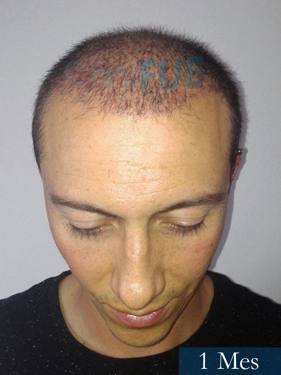 Andres 37 Barcelona injerto capilar turquia 1 mes 2