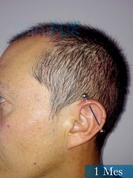 Andres 37 Barcelona injerto capilar turquia 1 mes 5