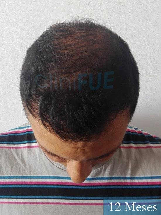 Andres 37 Barcelona injerto capilar turquia 12 meses 2