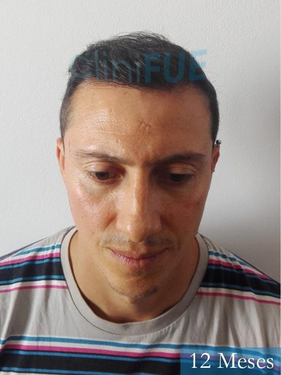 Andres 37 Barcelona injerto capilar turquia 12 meses