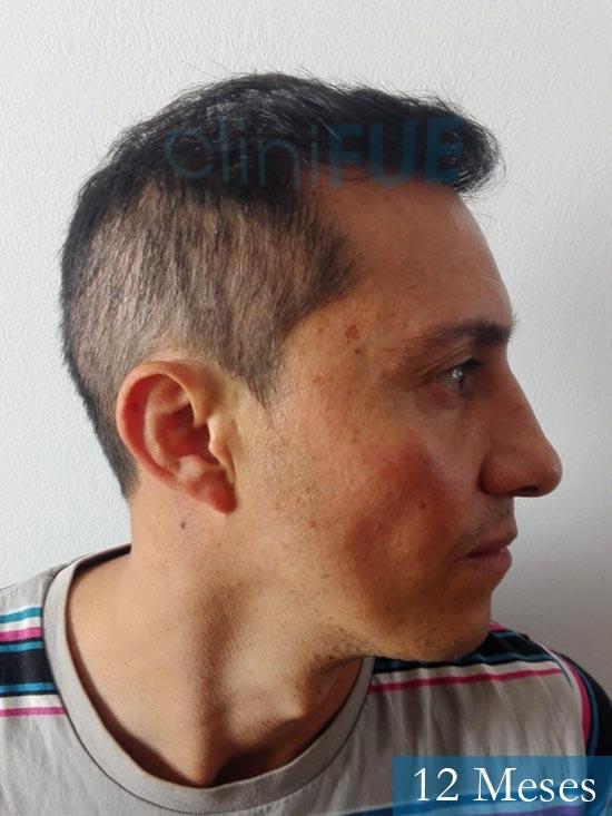 Andres 37 Barcelona injerto capilar turquia 12 meses 3