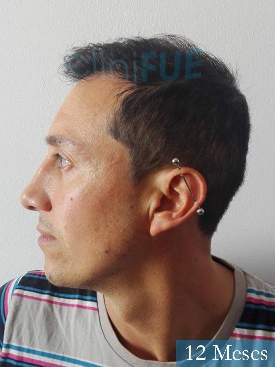 Andres 37 Barcelona injerto capilar turquia 12 meses 4