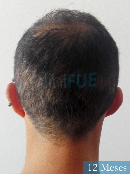 Andres 37 Barcelona injerto capilar turquia 12 meses 5