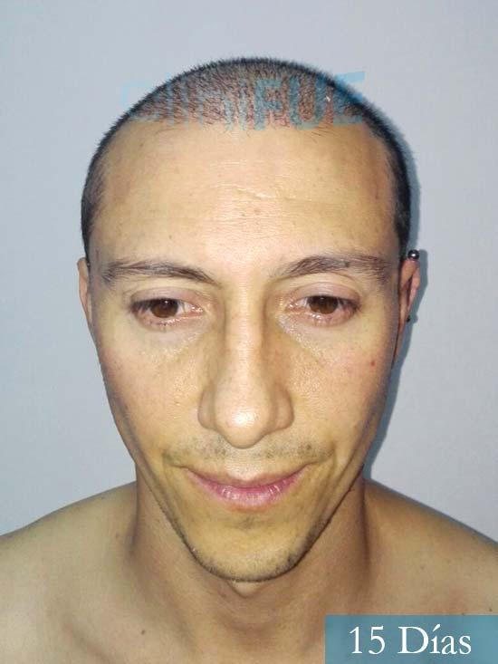 Andres 37 Barcelona injerto capilar turquia 15 dias