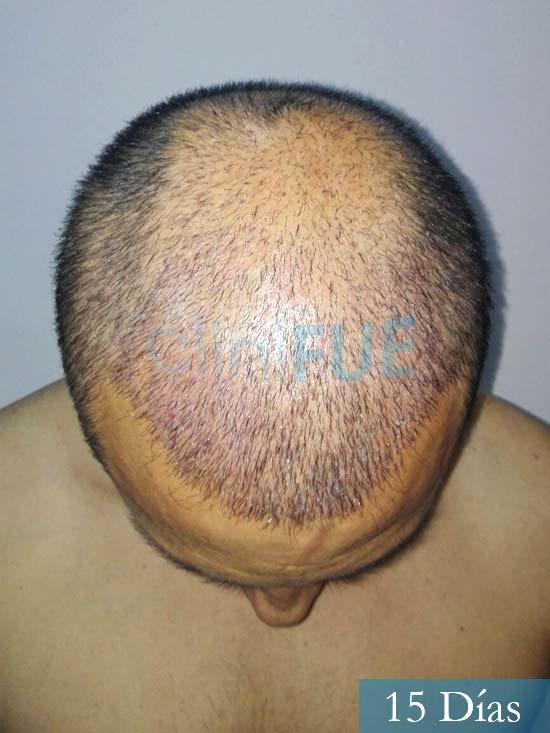 Andres 37 Barcelona injerto capilar turquia 15 dias 3