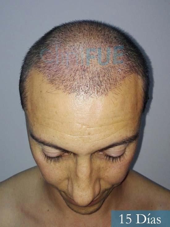 Andres 37 Barcelona injerto capilar turquia 15 dias 2