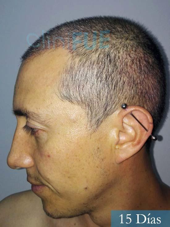 Andres 37 Barcelona injerto capilar turquia 15 dias 4