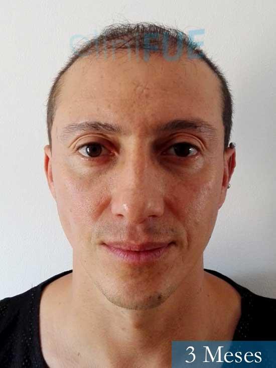 Andres 37 Barcelona injerto capilar turquia 3 meses