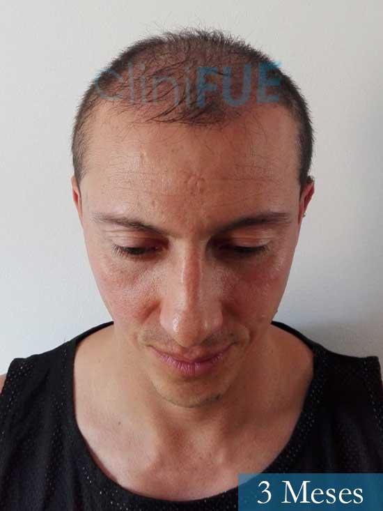 Andres 37 Barcelona injerto capilar turquia 3 meses 2