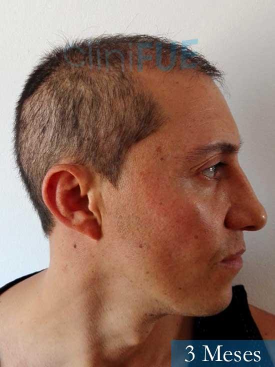 Andres 37 Barcelona injerto capilar turquia 3 meses 3