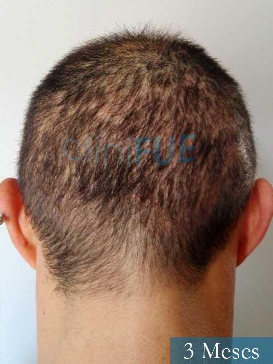 Andres 37 Barcelona injerto capilar turquia 3 meses 5