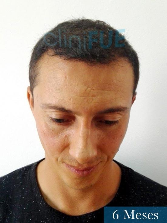 Andres 37 Barcelona injerto capilar turquia 6 meses 2