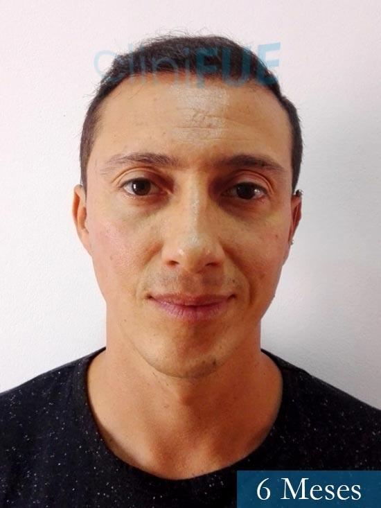 Andres 37 Barcelona injerto capilar turquia 6 meses
