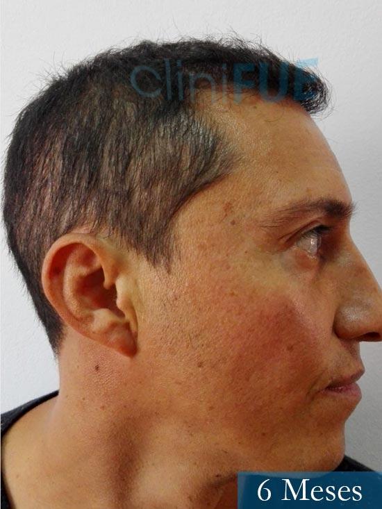 Andres 37 Barcelona injerto capilar turquia 6 meses 3