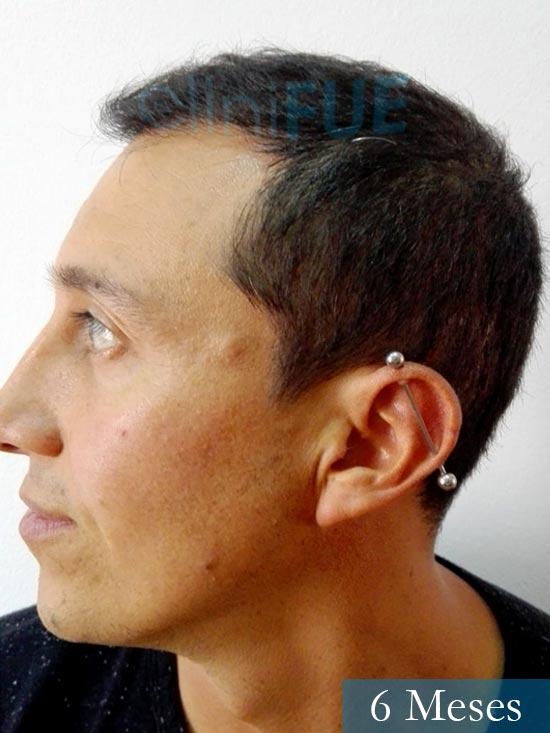 Andres 37 Barcelona injerto capilar turquia 6 meses 4