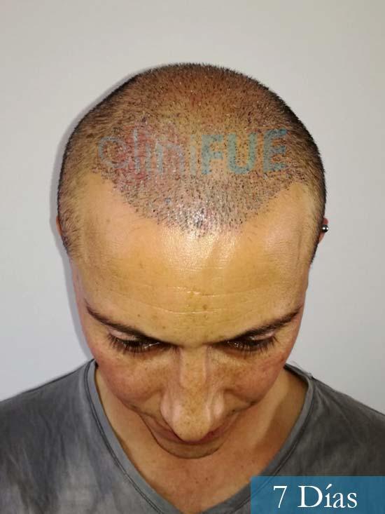 Andres 37 Barcelona injerto capilar turquia 7 dias 2