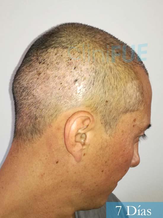 Andres 37 Barcelona injerto capilar turquia 7 dias 4