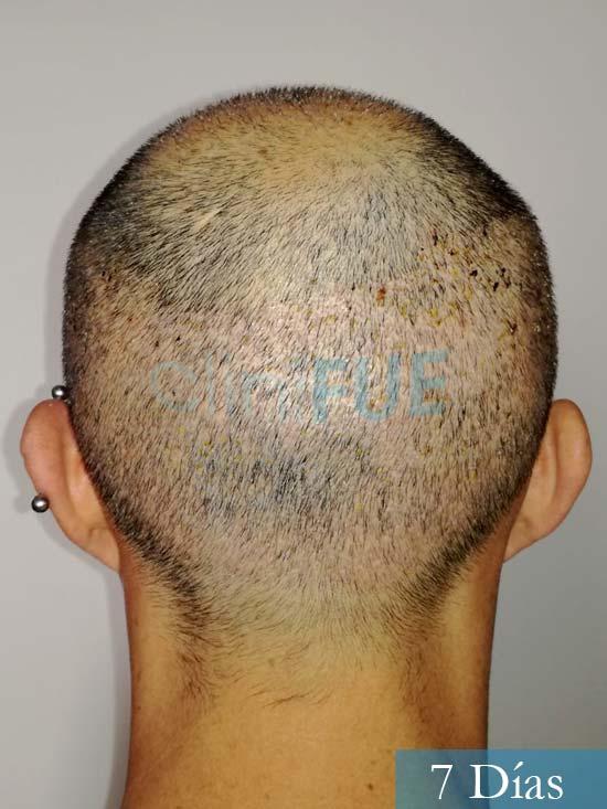 Andres 37 Barcelona injerto capilar turquia 7 dias 6