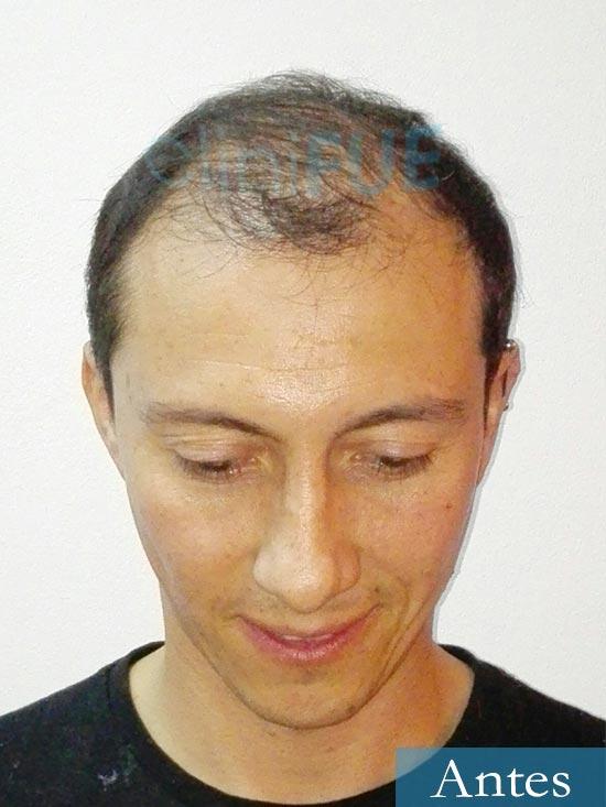 Andres 37 Barcelona injerto capilar turquia Antes 2