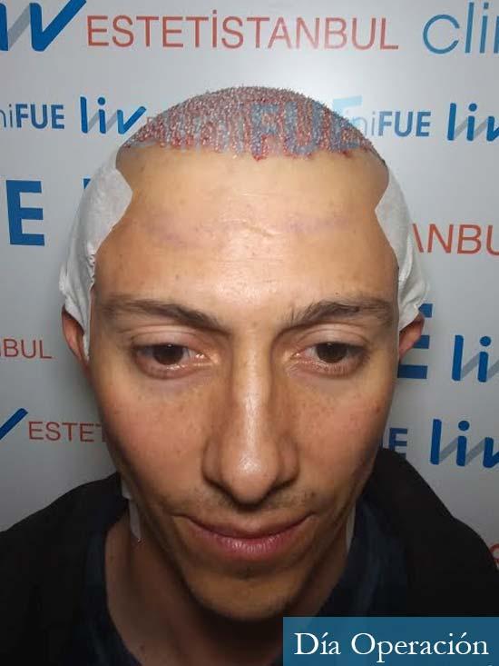 Andres 37 Barcelona injerto capilar turquia dia operacion