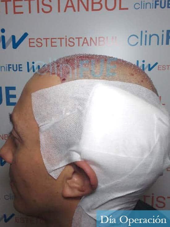 Andres 37 Barcelona injerto capilar turquia dia operacion 4